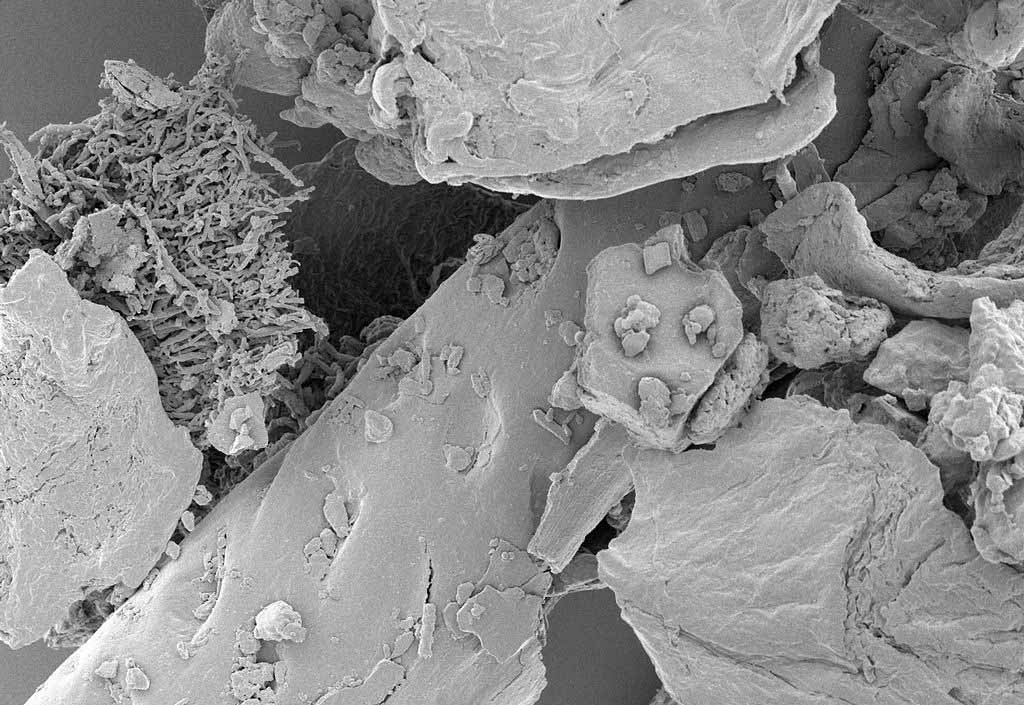 House dust under high magnification. (Photo: Wikimedia/NIAID)