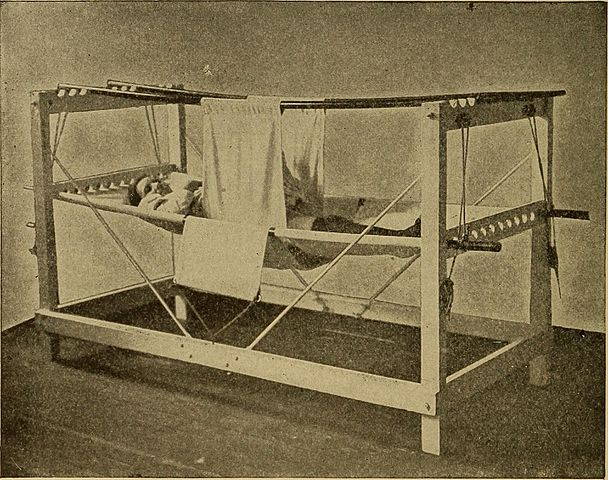 Patient in a symphysiotomy hammock after surgery, 1907 (Photo: Wikimedia/Flickr/The Library of Congress)